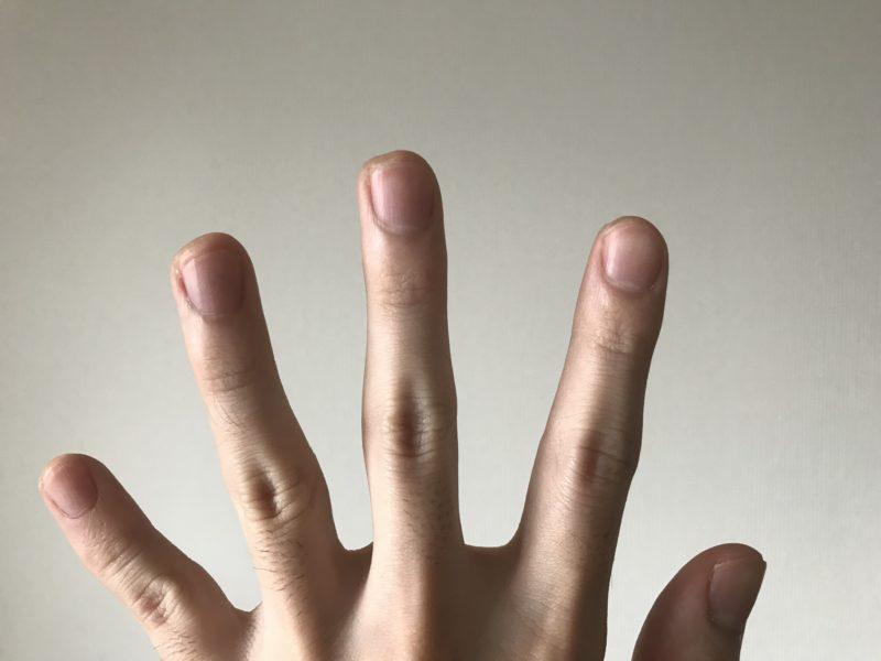 左手の爪を短く切った状態